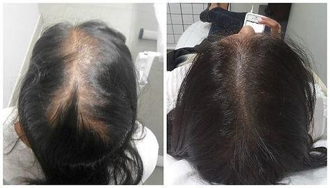 micropigmentação-capilar-antes-e-depois.