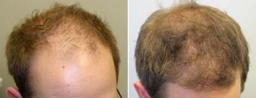 cabelo 5.jpg