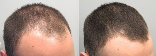 shampoo-para-calvicie-resultados-imediat