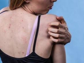 טיפול באקנה בגב