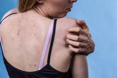 טיפול מומלץ באקנה בגב