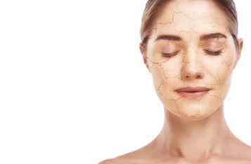 קרם פנים מומלץ לעור יבש
