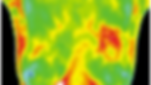 female breast thermography
