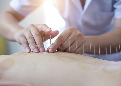 acupuncture and fibromyalgia.jpg