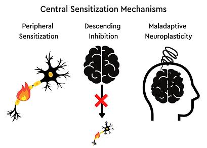 Central Sensitization .png