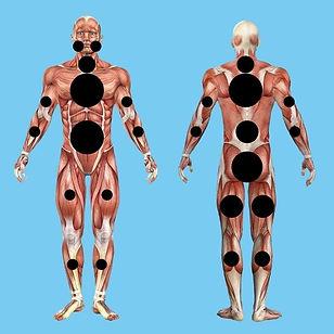 Fibromyalgia diagnostic symptom body chart.jpg