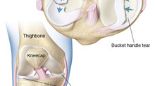 Keep your Meniscus it is a part of You