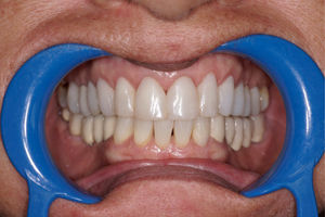 composite_veneers_after.jpg