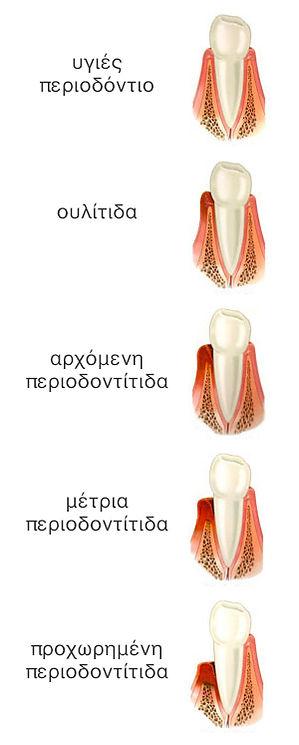 periodontitida-stadia.jpg