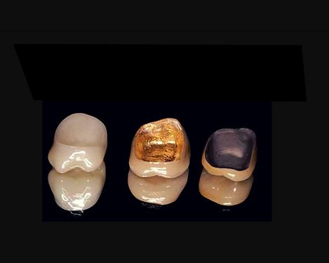 dental crowns.png