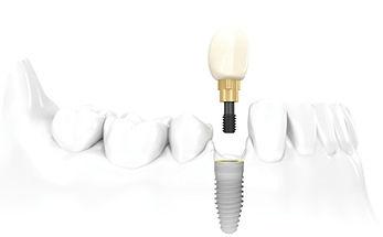 crown-on-implant (1).jpg