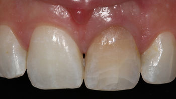 intrinsic-tooth-coloration.jpg