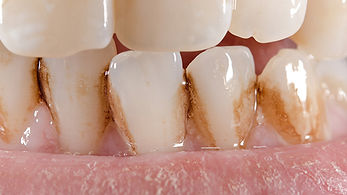 extrinsic-tooth-coloration.jpg