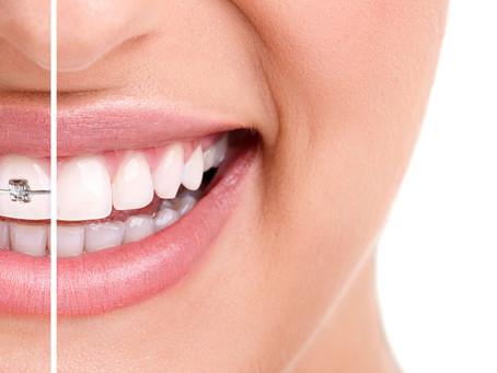 Ortodoncia para todos                                      Seria y responsable para ti