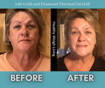 24 k Gold and Diamond Thermal Face Lift