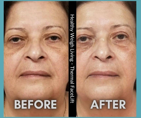 Healthy weigh living face treatment