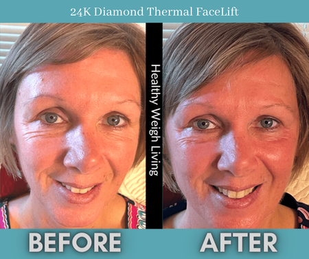 24K Diamond Dermal Treatment tampa fl