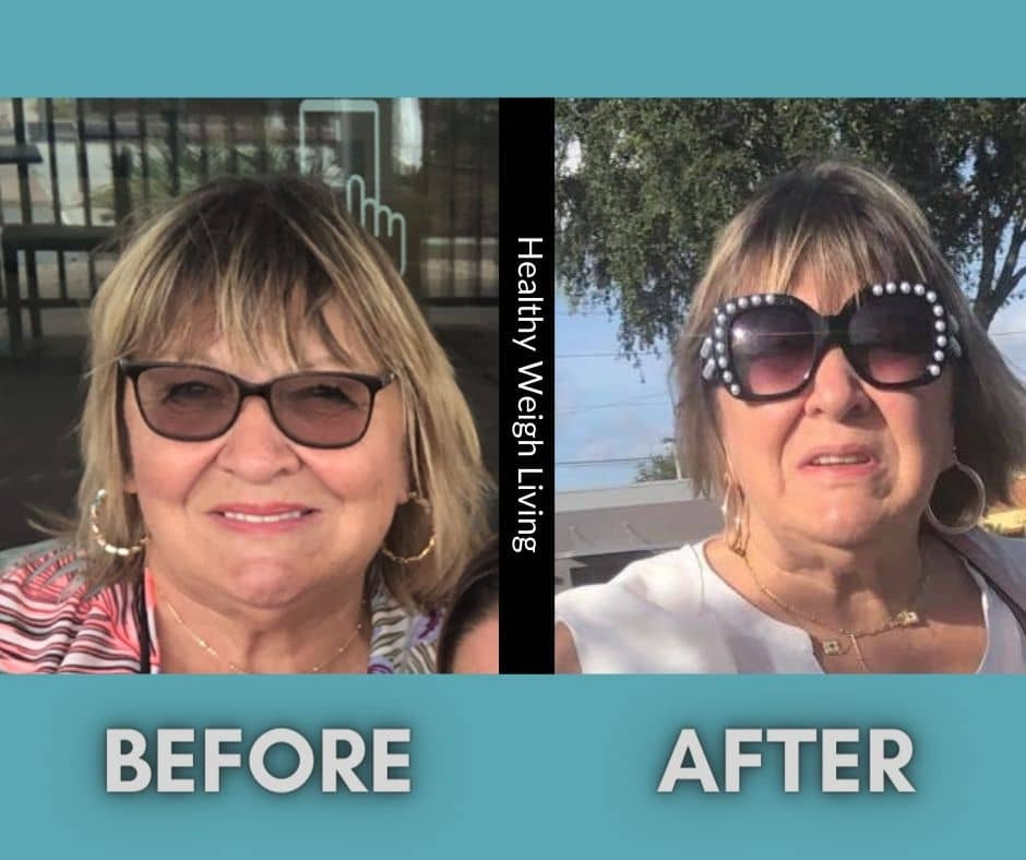 Healthy weigh living face treatment!!.jp