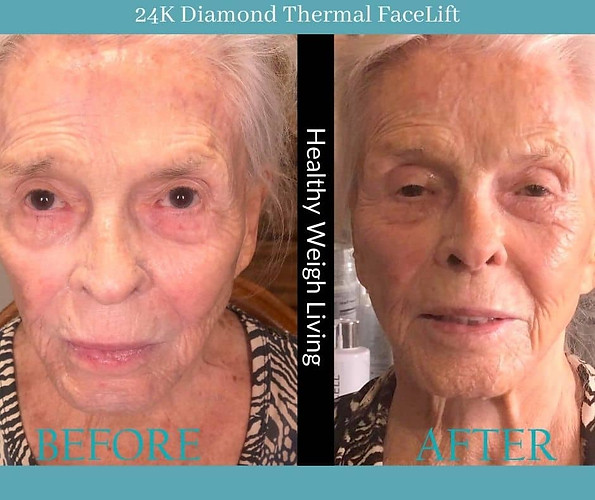 24k diamond dermal treatment