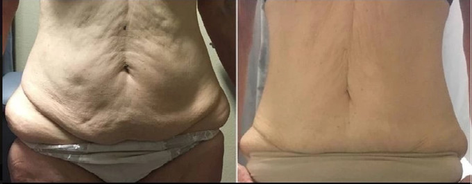 Life Changing -C (after 12 sessions)