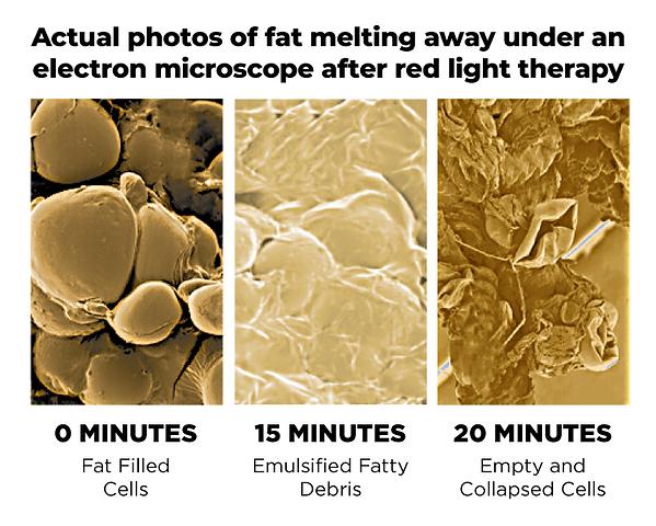 melt that fat away