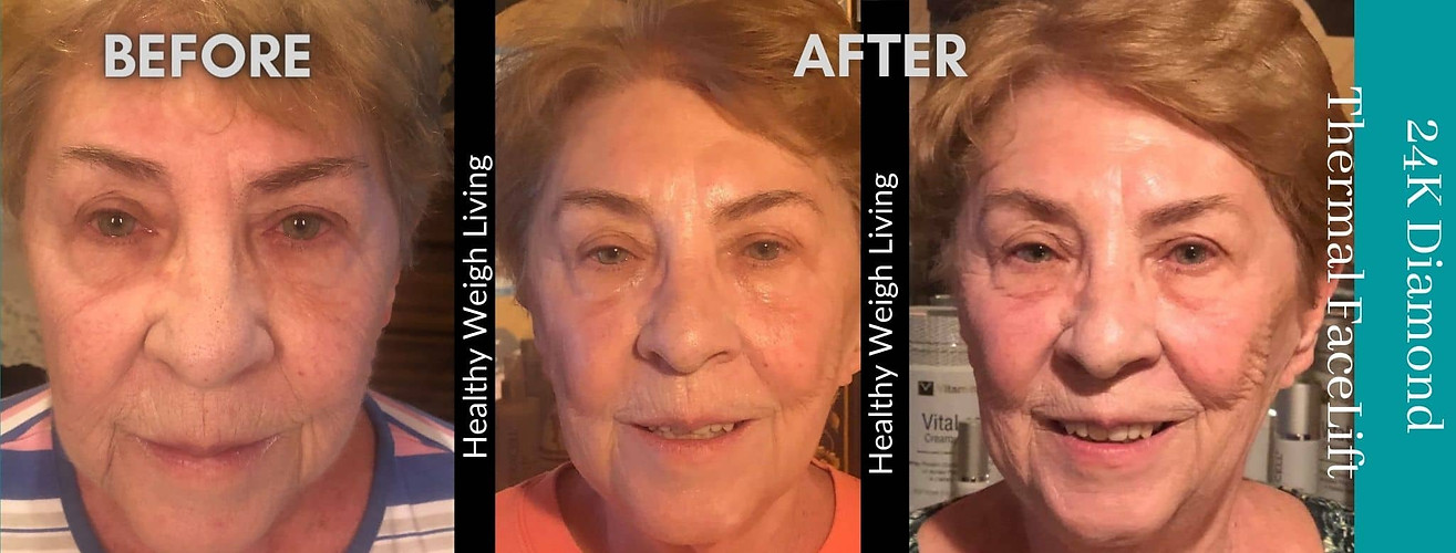 thermal facelift treatment