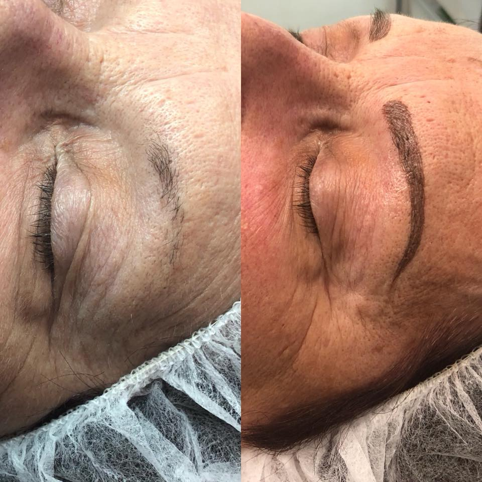 Nyla's Microblading Treatment