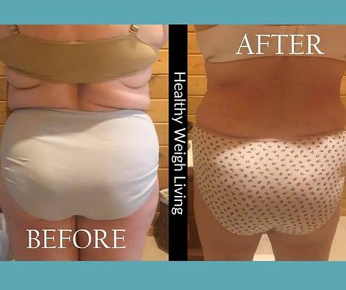 Weight loss 3 weeks treatment homosassa