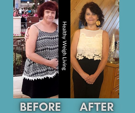 Weightloss-Infrared Light Therapy Tampa