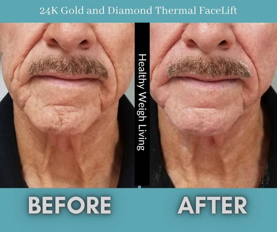 Thermal Facelift