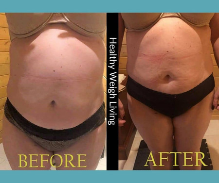 Cellulite reduction 35 inches in 4 weeks