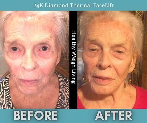 24k diamond dermal treatment