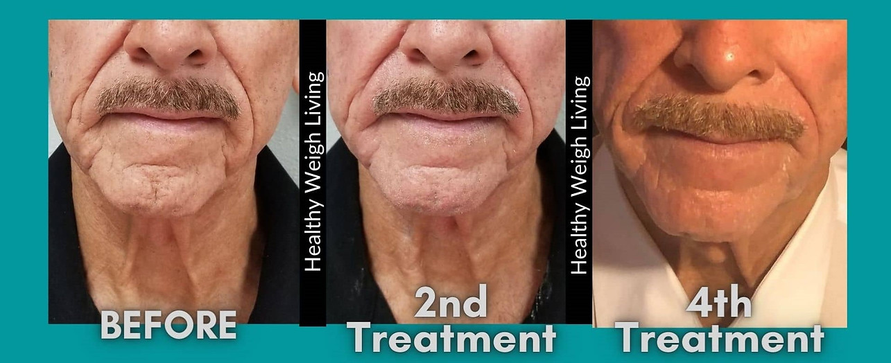 thermal facelift treatment homosassa fl