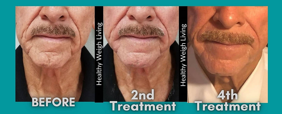 thermal facelift treatment homosassa fl