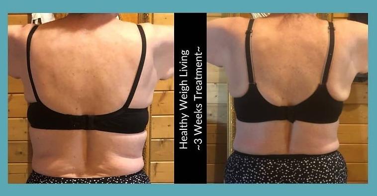 Weight loss 6 weeks treatment homosassa