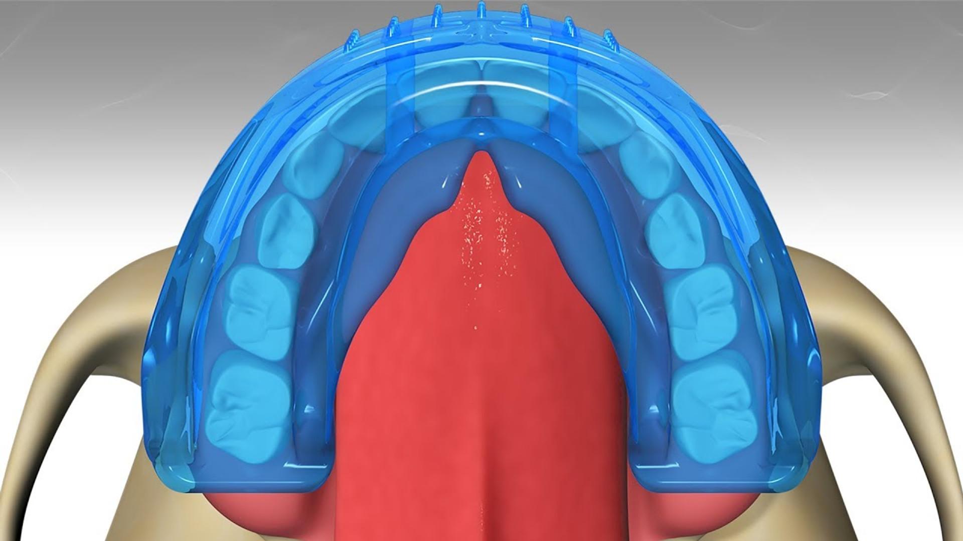 Myobrace Treatment