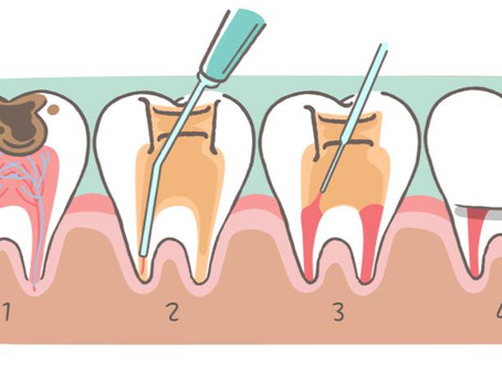 Dental Health and Root Canals
