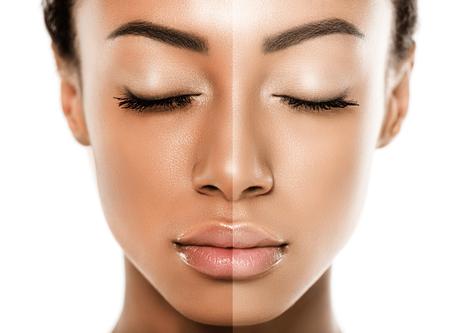 Skin Lightening, Brightening & Whitening: Everything You Need To Know