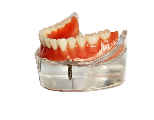 Lower jaw model and  denture on implants isolated on  white background_