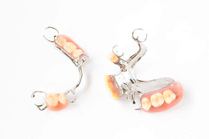 removable partial denture on white background.jpg