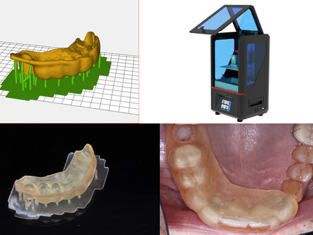 Computer guided dental implants - a new revolution in accurate, lower risk dental implant placement