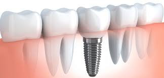Are dental implants really the best way to replace a missing tooth?