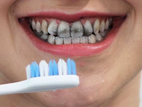 Can I whiten my teeth with activated charcoal?  Is it safe?