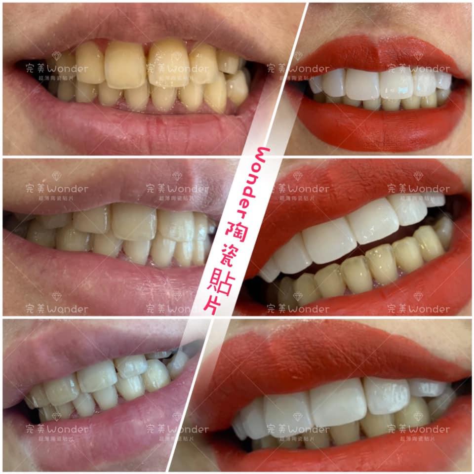 #瓷化貼面 #美容牙齒 #牙齒美白