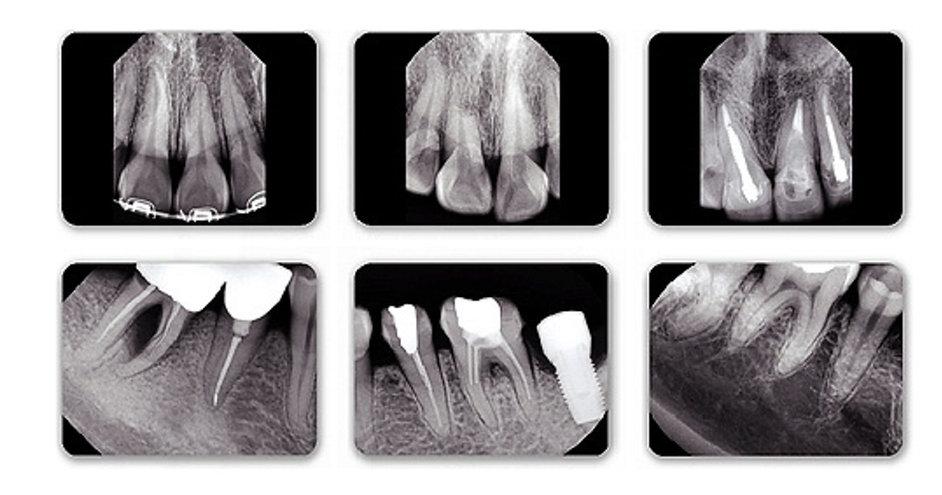 dental x ray sensor comparison