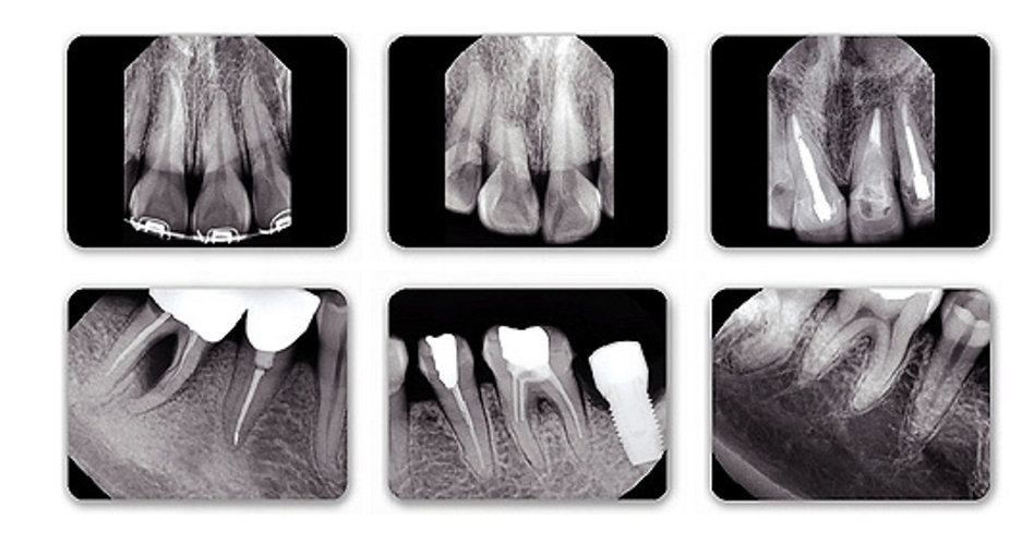 dental xray x-ray handy image jpeg easy light yahoo google amazon ebay bing