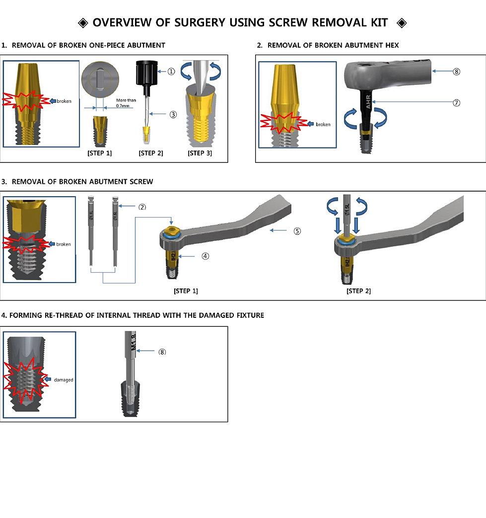 Dental Implants Broken Fractured Damaged Screw Removal