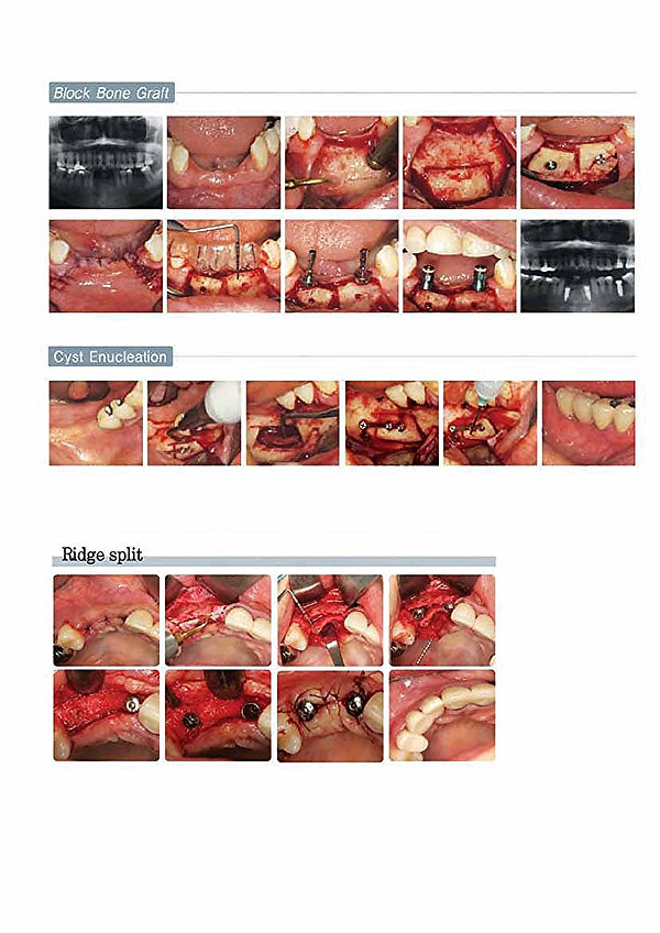 bone graft sinus lift MECTRON touch screen inc cena academy usato opinie price ultrasonic google piezoelectric dental precision medical periodontology implantology piezotome