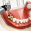 Thumbnail: Dental Implant Surgical Guide