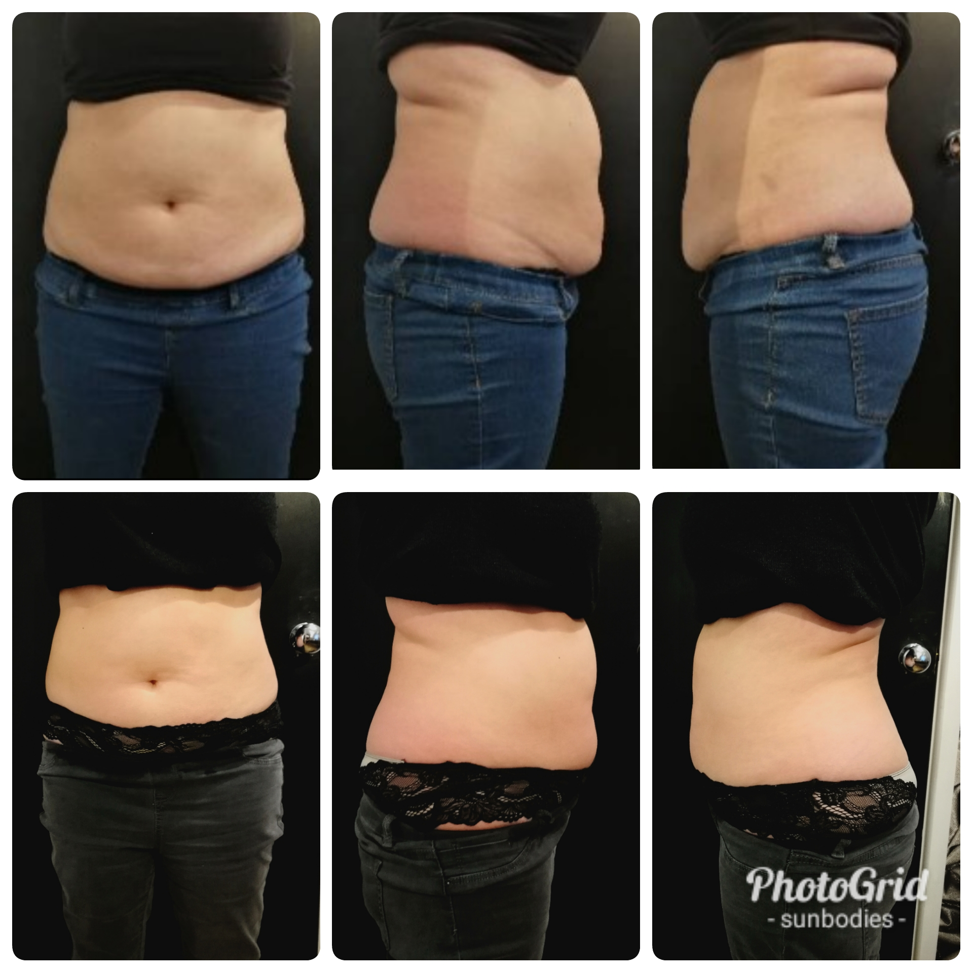 Fat Freezing & Cavitation